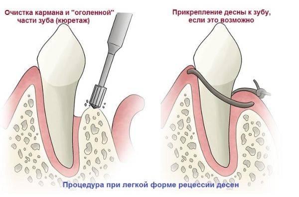 подрезание десны