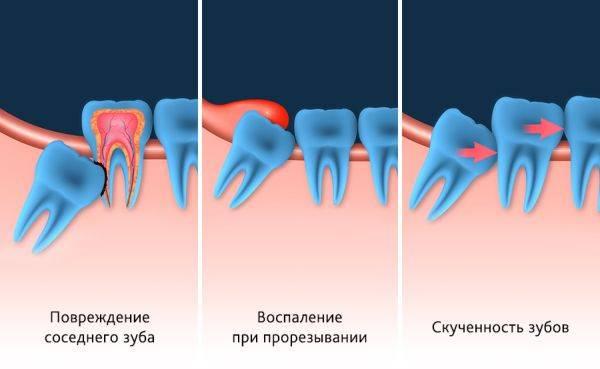 Повреждение зубов