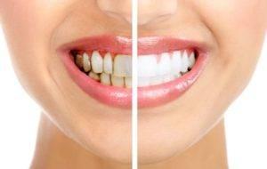 Зубы с налетом и после чистки