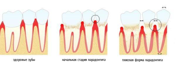 Стадии развития заболевания десен