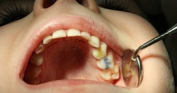 Верхние зубы человека