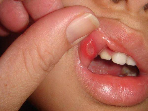 Стоматит во рту у мальчика
