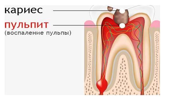 воспаление сосудисто-нервного пучка зуба