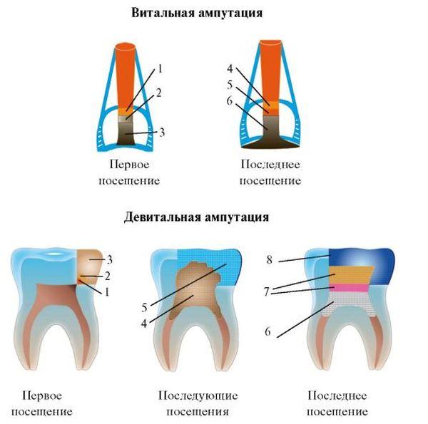 Методика наложения пломбировочных материалов