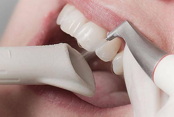 Воздушно-абразивная обработка зубов
