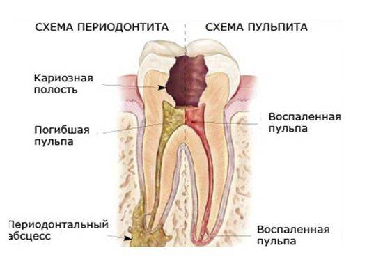 Классификация периодонтита