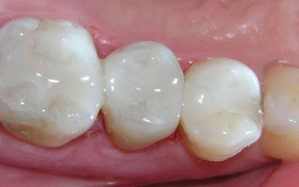 пломбы в зубах