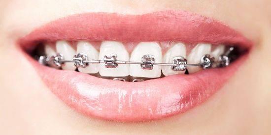 способ исправления кривых зубов