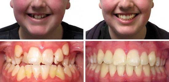 брекеты, до и после, фото 1