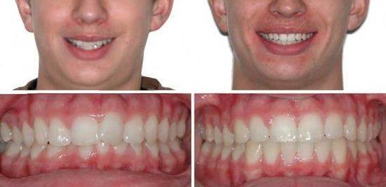 брекеты, до и после, фото 2