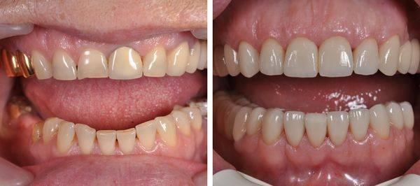 фото до и после установки коронок на зубы