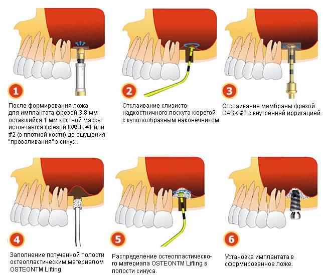 Техника работы при закрытом синус-лифтинге