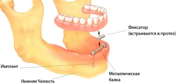 zubnye-protezy;