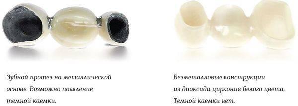 Коронки из диоксида циркония