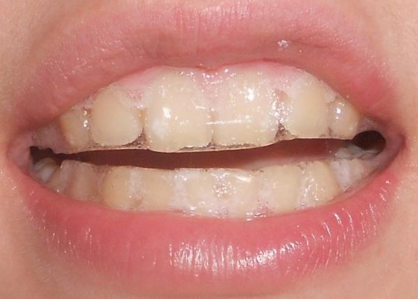 чистка зубов от налета