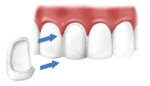 Виниры на зубы: плюсы и минусы