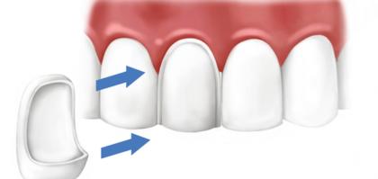 Выравнивание зубов винирами