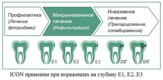 lechenie-zubov-bez-sverleniya-gelem