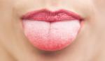 О чем говорит налет на языке: причины и лечение