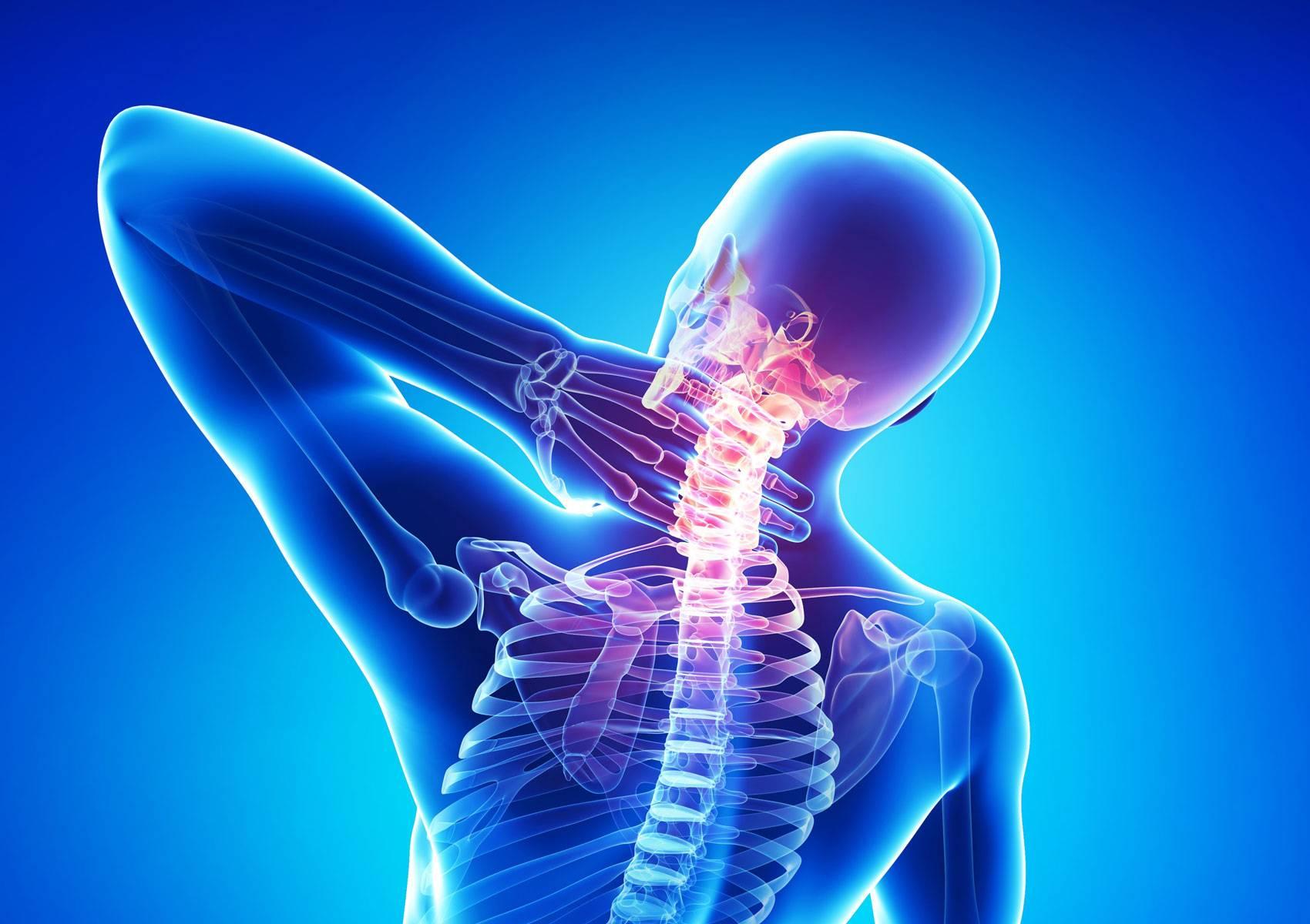 osteohondroz-shei