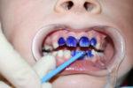 Cеребрение зубов у детей