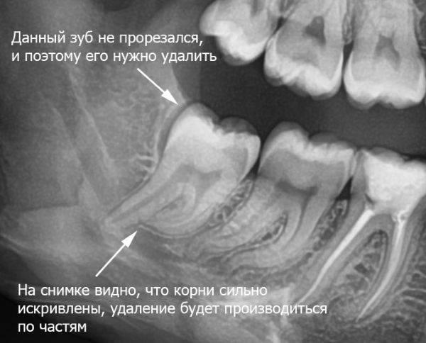рентгенография зубов