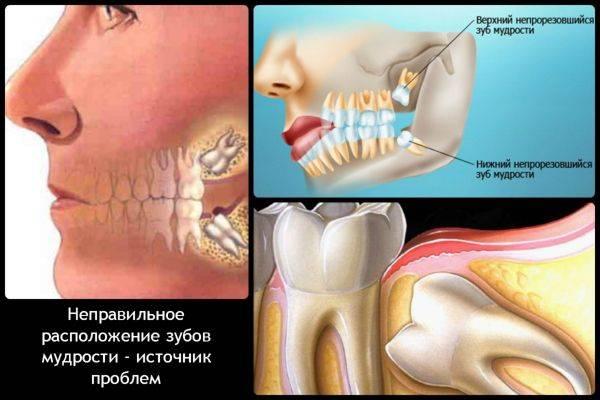 зубы отклоняются в сторону