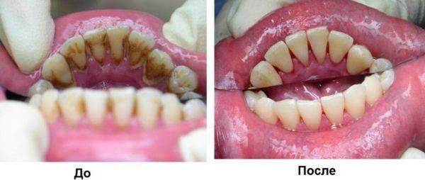 Зубы до и после удаления камней