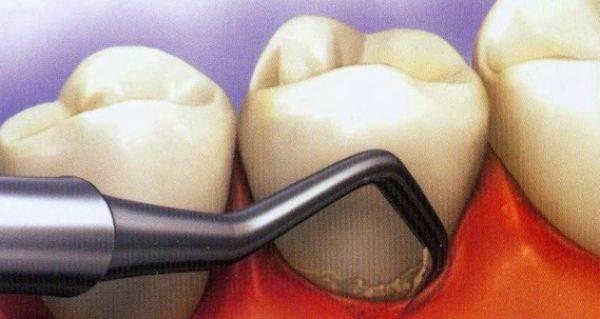 Чистка зубов ультразвуком