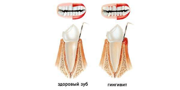 здоровый зуб и больной