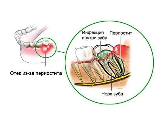 инфекция в зубе