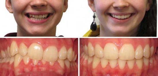 брекеты, до и после, фото 3