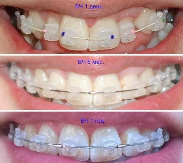 фото до и после - брекеты
