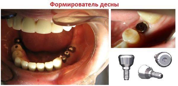 implantaciya-zubov_2