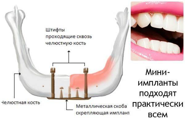 мини импланты