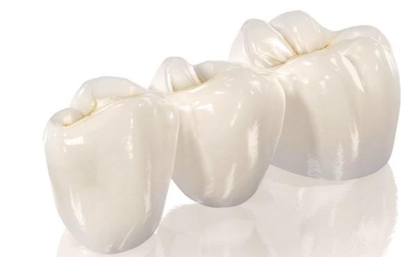Зубные протезы коронки