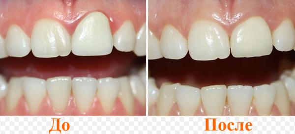 Зубные протезы до и после установки