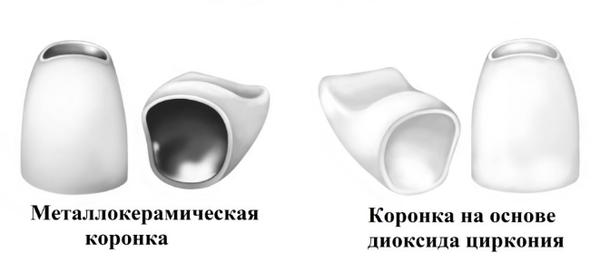 cirkonievye-koronki_6
