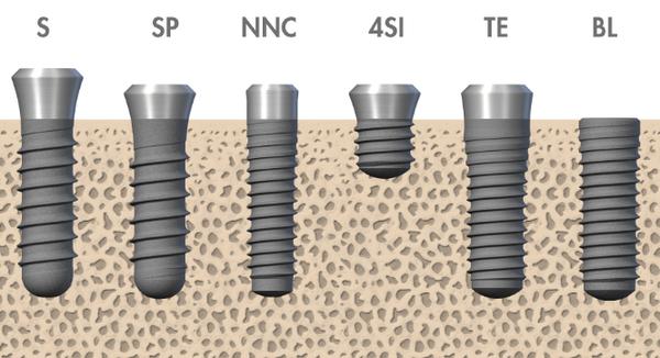 Модельный ряд имлантатов Straumann
