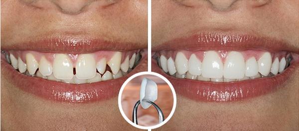 Фото до и после установки люминиров