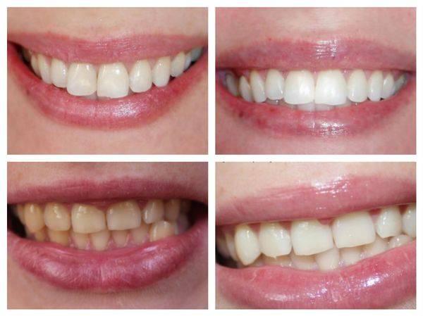 фото до и после применения отбеливающих полосок
