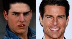 Мифы о стоматологах
