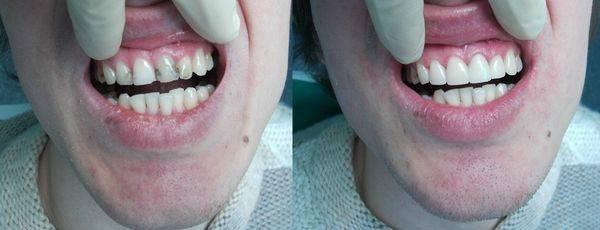 Композитная реставрация зуба