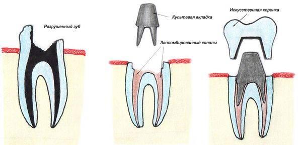 Вкладки Зубные вставки