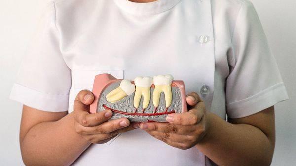 skolko-zubov-u-cheloveka_2
