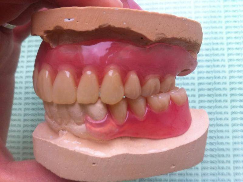 chto-takoe-neilonovyi-zubnoi-protez