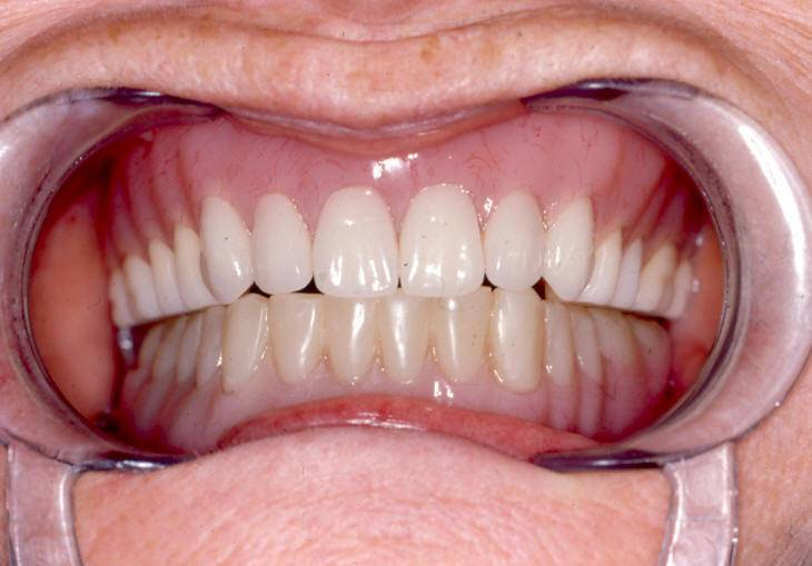 dentures-107114648