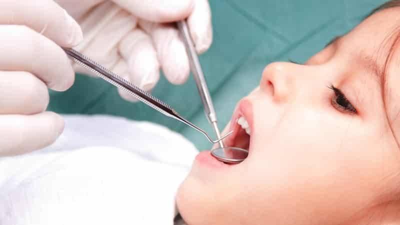 Сколько можно ходить с мышьяком в зубе и зачем в зуб кладут мышьяк, сколько держать?
