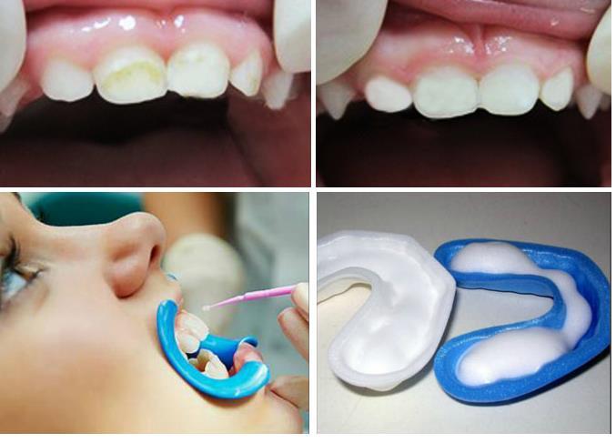 Фторирование зубов - что это такое? Как проводится процедура глубокого фторирования зубов?